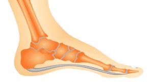 Chinelo ortopédico - Pé Normal